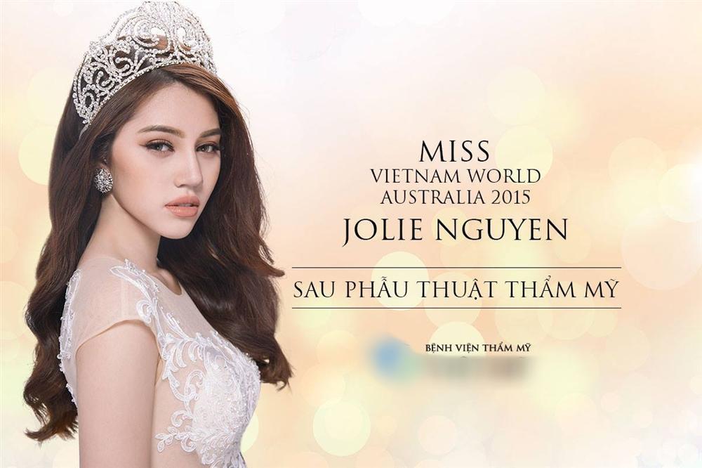 Jolie Nguyễn thú nhận từng phẫu thuật thẩm mỹ-2