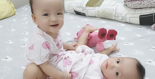 Ca mổ tách dính phức tạp cho 2 bé 13 tháng tuổi: Kéo dài 12 tiếng, êkip mổ 90 người-1