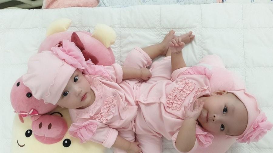Ca mổ tách dính phức tạp cho 2 bé 13 tháng tuổi: Kéo dài 12 tiếng, êkip mổ 90 người-2
