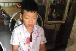 Bé trai lớp 1 bị người đàn ông hành hung để 'trả thù' đang hoảng loạn, không muốn đến trường học