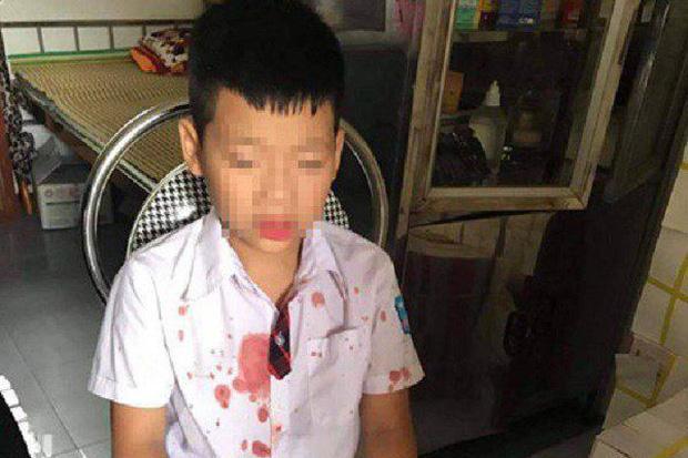 Bé trai lớp 1 bị người đàn ông hành hung để trả thù đang hoảng loạn, không muốn đến trường học-1