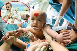 Bắt đầu ca đại phẫu 'cân não' kéo dài 12 giờ tách rời cặp song sinh phức tạp nhất Việt Nam