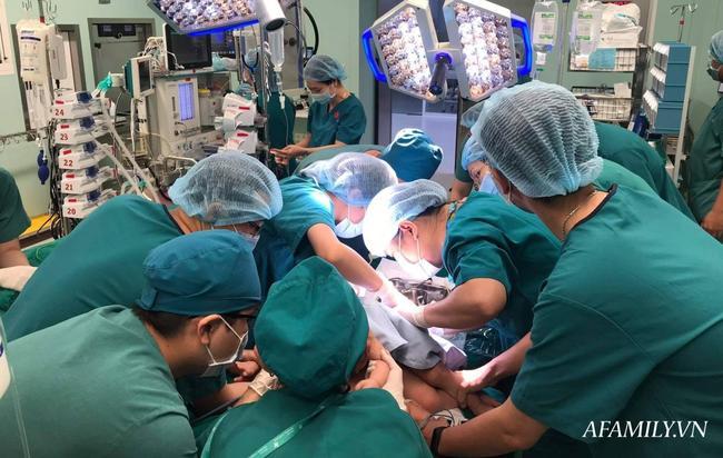 Bắt đầu ca đại phẫu cân não kéo dài 12 giờ tách rời cặp song sinh phức tạp nhất Việt Nam-4