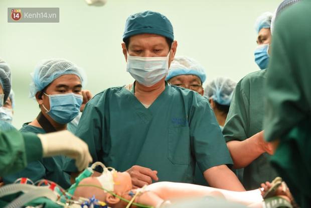 Cập nhật: Hình ảnh từ phòng đại phẫu sinh tử, tách 2 bé dính nhau khó nhất Việt Nam-9