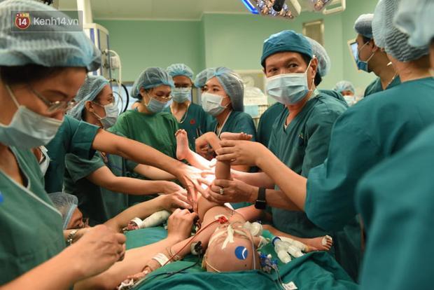Cập nhật: Hình ảnh từ phòng đại phẫu sinh tử, tách 2 bé dính nhau khó nhất Việt Nam-10