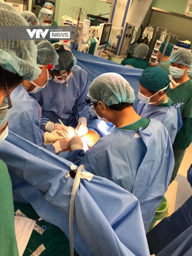 Cập nhật: Hình ảnh từ phòng đại phẫu sinh tử, tách 2 bé dính nhau khó nhất Việt Nam-12