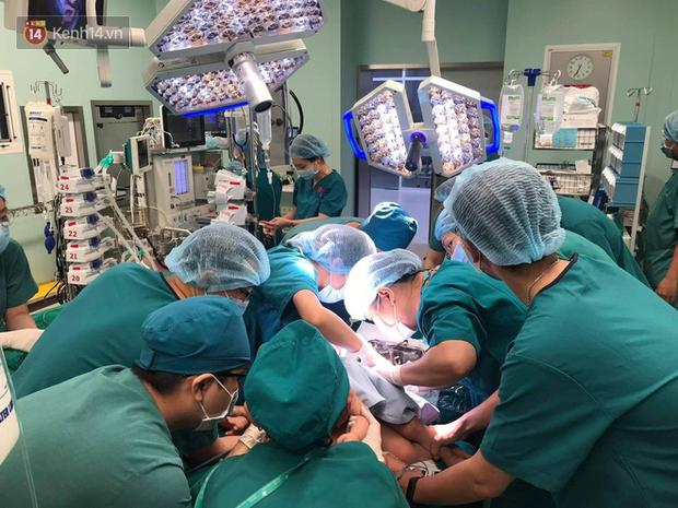 Cập nhật: Hình ảnh từ phòng đại phẫu sinh tử, tách 2 bé dính nhau khó nhất Việt Nam-7