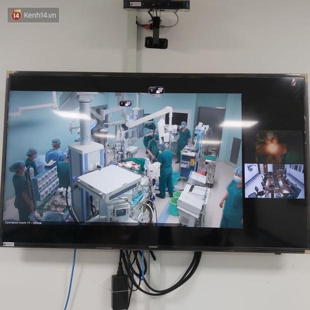 Cập nhật: Hình ảnh từ phòng đại phẫu sinh tử, tách 2 bé dính nhau khó nhất Việt Nam-3