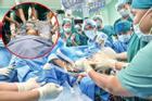8 tiếng phẫu thuật liên tục, cặp song sinh dính liền được tách rời thành công