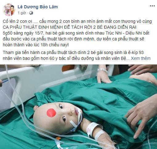 Sao Việt nín thở - vỡ òa khi 2 bé gái song sinh thực hiện ca mổ tách thành công-11