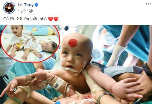 Sao Việt nín thở - vỡ òa khi 2 bé gái song sinh thực hiện ca mổ tách thành công-12