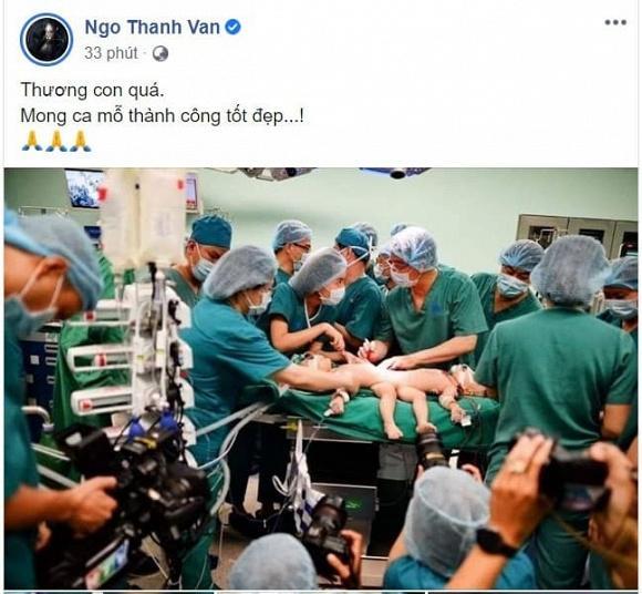 Sao Việt nín thở - vỡ òa khi 2 bé gái song sinh thực hiện ca mổ tách thành công-6