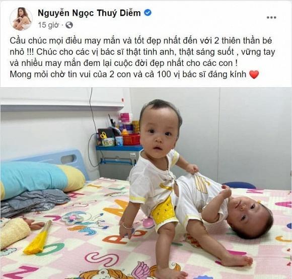 Sao Việt nín thở - vỡ òa khi 2 bé gái song sinh thực hiện ca mổ tách thành công-8
