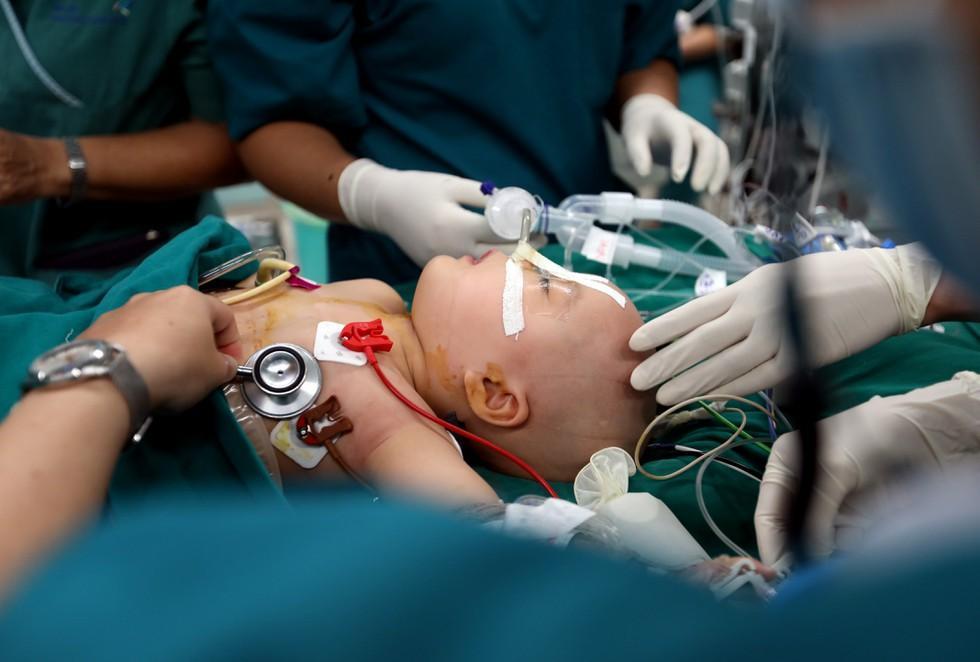 Những khoảnh khắc cân não và xúc động nhất ca đại phẫu tách cặp song sinh Trúc Nhi - Diệu Nhi-8