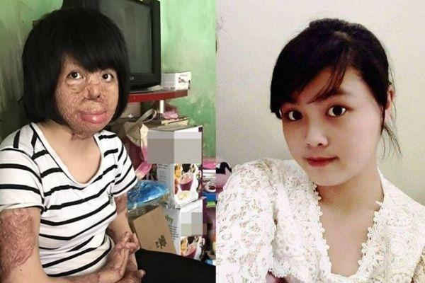 Lần phẫu thuật thứ 17 của cô gái Hà Nội bị chồng tưới xăng thiêu sống-1
