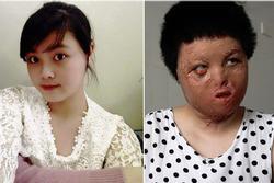 Lần phẫu thuật thứ 17 của cô gái Hà Nội bị chồng tưới xăng thiêu sống