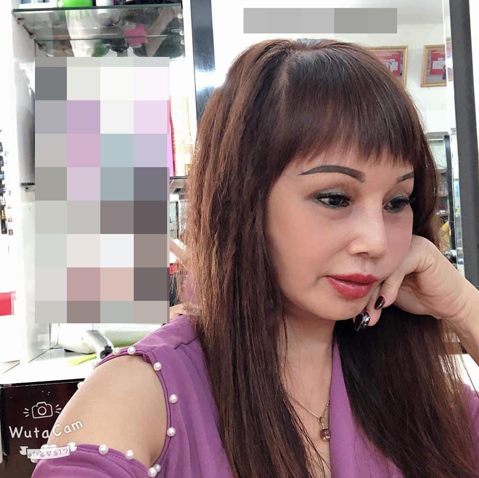 Chỉnh ảnh qua 7749 app, cô dâu Cao Bằng mặt vẫn lệch vẹo sau 3 tuần dao kéo-5