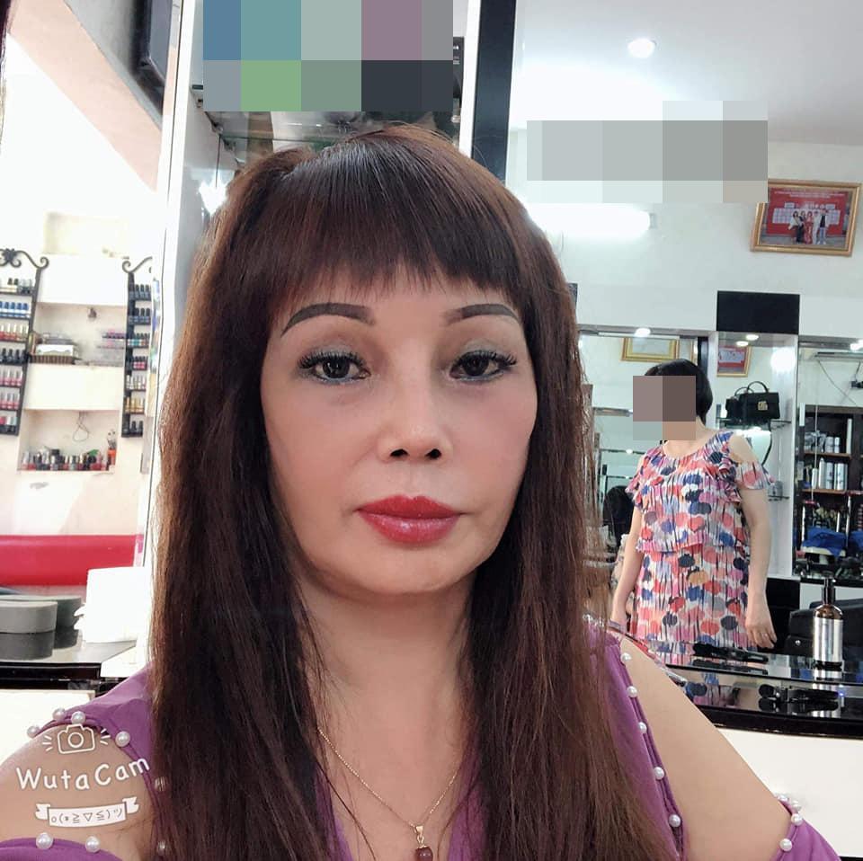Chỉnh ảnh qua 7749 app, cô dâu Cao Bằng mặt vẫn lệch vẹo sau 3 tuần dao kéo-6
