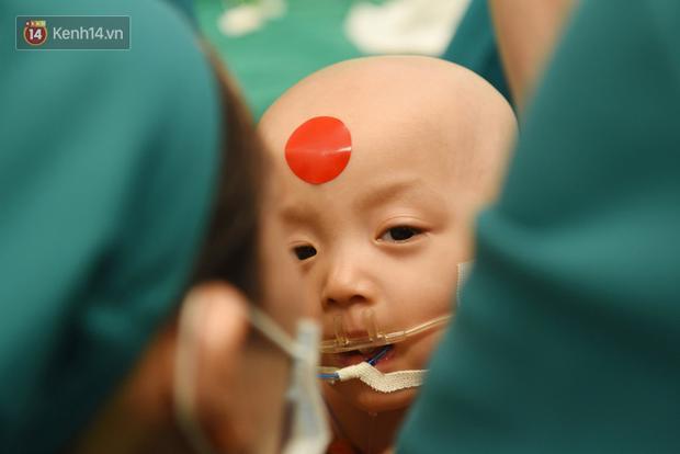 Cặp song sinh Trúc Nhi - Diệu Nhi vẫn còn đau sau ca mổ, người mẹ mua đồ chơi nhờ bác sĩ tiệt trùng gửi cho con-1