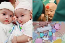 Cặp song sinh Trúc Nhi - Diệu Nhi vẫn còn đau sau ca mổ, người mẹ mua đồ chơi nhờ bác sĩ tiệt trùng gửi cho con