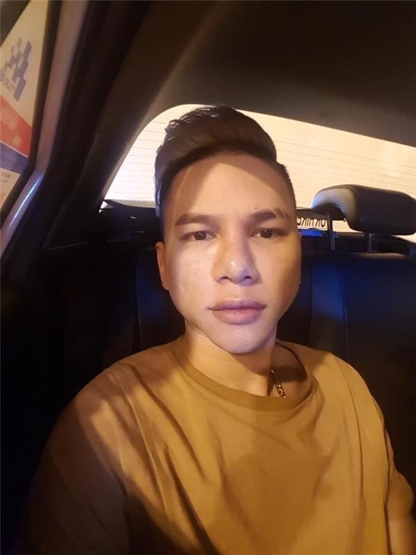 Quỳnh Kool - Hoàng Tôn: người khẳng định không dao kéo, người khổ sở vì biến chứng thẩm mỹ-6