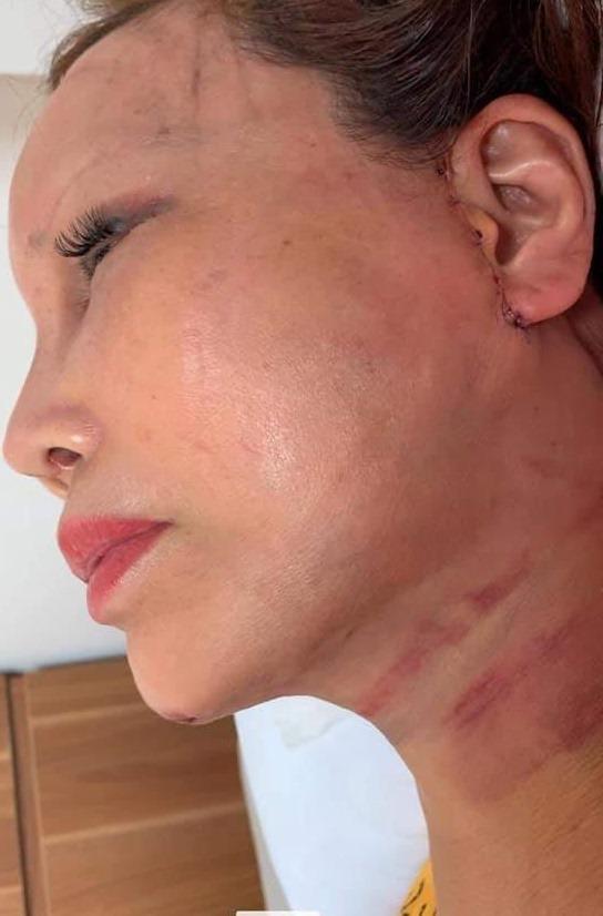 1 tháng sau dao kéo, cô dâu 63 tuổi ở Cao Bằng mặt sưng phù, sẹo chằng chịt-3