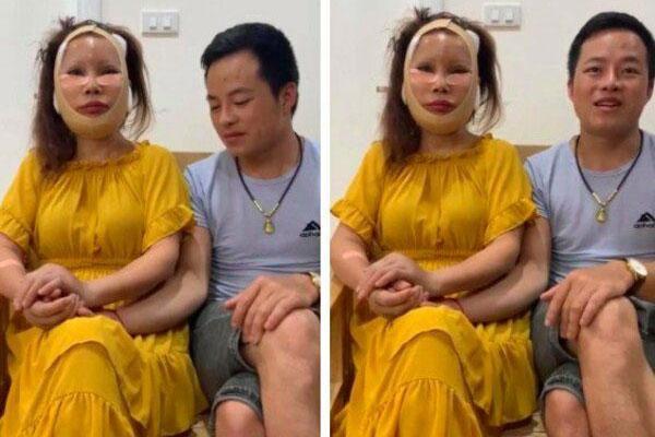 1 tháng sau dao kéo, cô dâu 63 tuổi ở Cao Bằng mặt sưng phù, sẹo chằng chịt-1