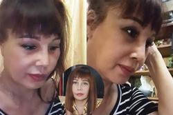 Hơn 1 tháng sau 'dao kéo', gương mặt cô dâu 63 tuổi ở Cao Bằng vẫn méo lệch