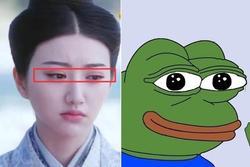 Cảnh Điềm bị chê 'giống ếch' khi công khai thẩm mỹ hỏng