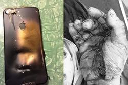 Vừa sạc điện thoại vừa dùng, nam thanh niên Quảng Bình cháy bỏng toàn thân