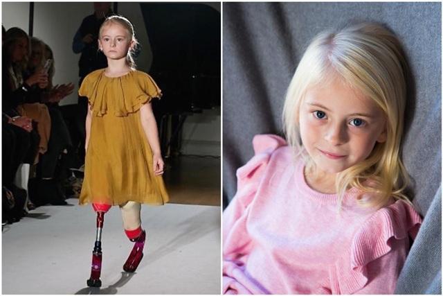 Bé gái sinh ra với chân 5cm, 18 tháng phải cắt cụt chân, sau 10 năm trở thành hiện tượng-3