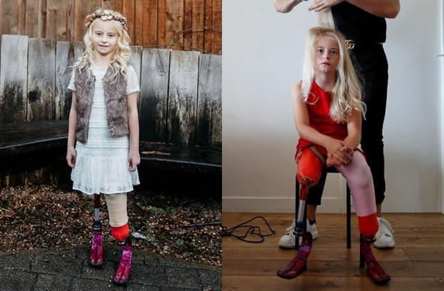 Bé gái sinh ra với chân 5cm, 18 tháng phải cắt cụt chân, sau 10 năm trở thành hiện tượng-5