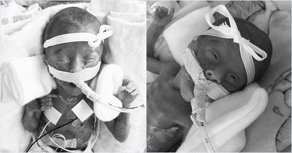 Cặp song sinh chào đời chỉ nặng 0,5kg, dài bằng gang tay bố hiện giờ thế nào?-2