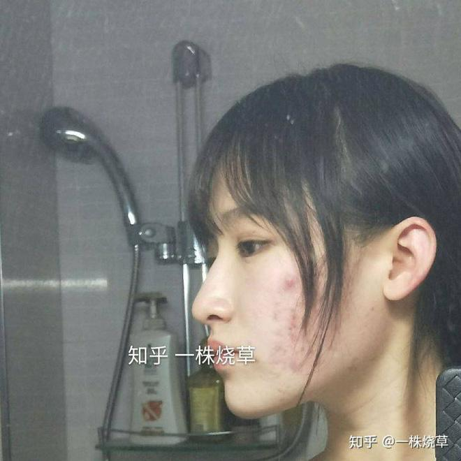 Gái xinh công khai chuyện photoshop da để sống ảo, nói hộ nỗi lòng của team bị mụn hành hạ-2