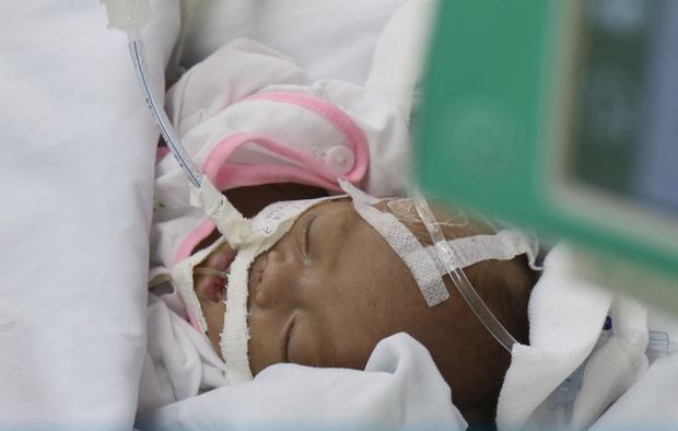 TP.HCM: Xót xa bé trai sơ sinh bệnh nặng bị cha mẹ bỏ rơi, bàn tay yếu ớt bấu chặt giường bệnh tìm sự sống-3