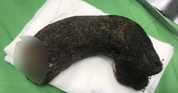 Sợ hãi búi tóc nặng 1kg lấy ra từ dạ dày bé gái 11 tuổi ở Nghệ An-2