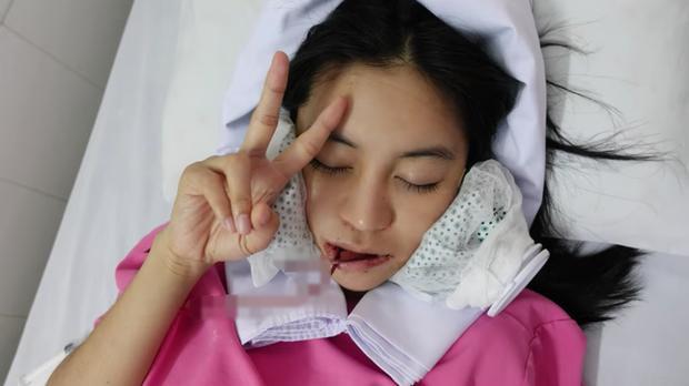 Hot girl Trang Anna bổ sung ca phẫu thuật hạ gò má vào bộ sưu tập đập mặt xây lại-1