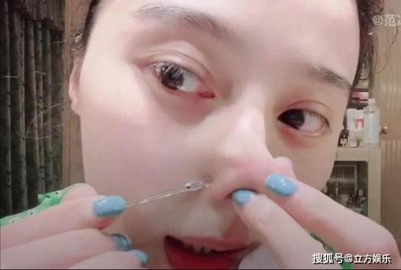 Phạm Băng Băng véo mũi nặn mụn xóa tan nghi vấn phẫu thuật thẩm mỹ-4