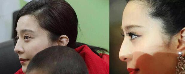 Phạm Băng Băng véo mũi nặn mụn xóa tan nghi vấn phẫu thuật thẩm mỹ-3