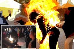 Thái Bình: Mâu thuẫn gia đình, vợ bị chồng đốt cháy ngùn ngụt, bỏng đến 90%