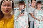 Tròn 2 tháng dao kéo, cô dâu Cao Bằng vẫn để lộ gương mặt méo lệch đáng thất vọng