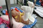 Giận vợ bỏ đi, chồng đánh con 4 tháng tuổi gãy chân chỉ vì bé không chịu ngủ