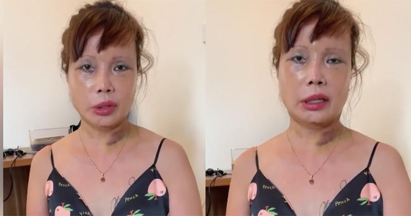 Nghi vấn cô dâu 63 tuổi ở Cao Bằng chuẩn bị phẫu thuật nâng ngực-2