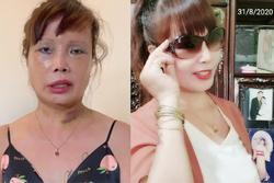 Nghi vấn cô dâu 63 tuổi ở Cao Bằng chuẩn bị phẫu thuật nâng ngực