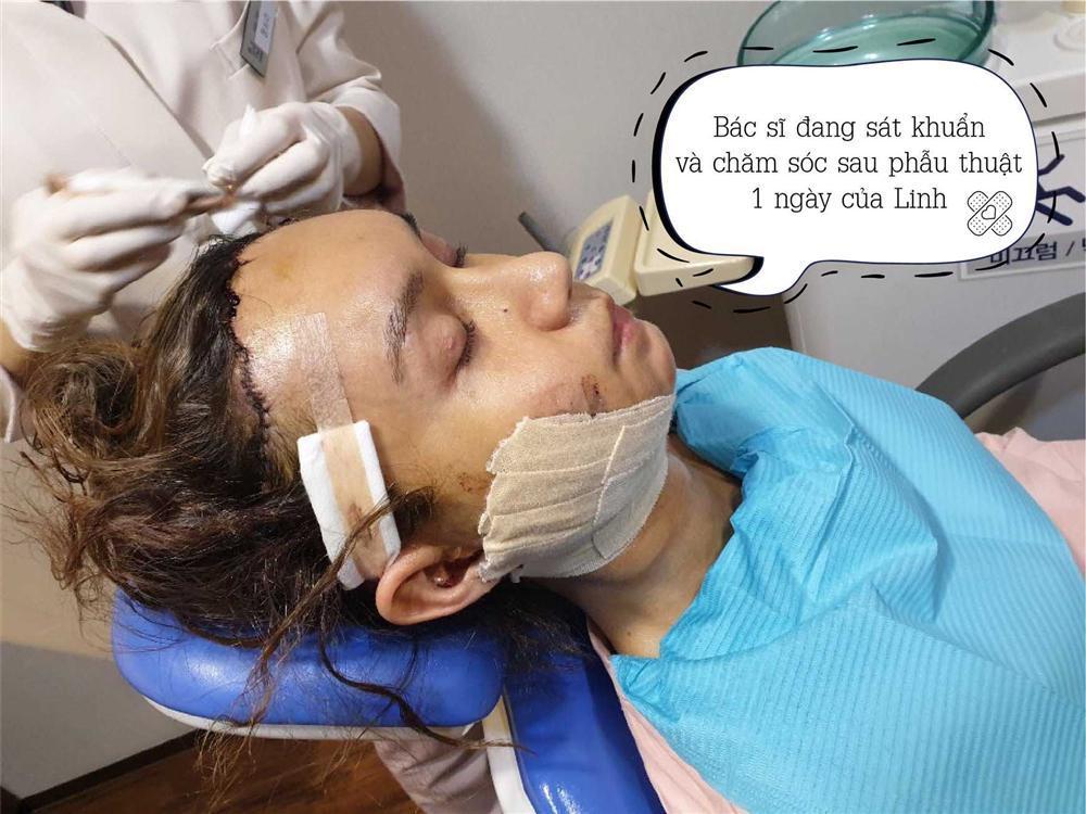 Lynk Lee chi 200 triệu đại phẫu cắt gọn da mặt nhưng vẫn không che nổi vầng trán sân bay-2