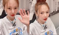 'Nữ thần sexy' HyunA tiết lộ tình trạng sức khỏe