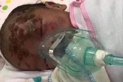 Yên Bái: Đau xót bé sơ sinh bị bỏ rơi ở ven đường có nhiều vết xước trên mặt