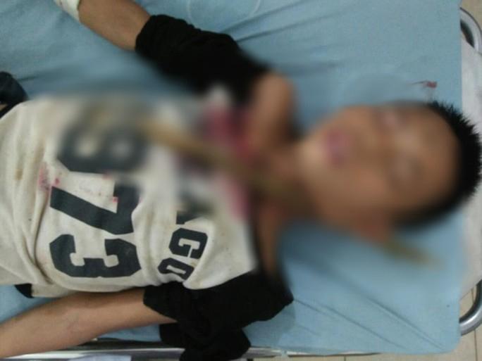 Trèo cây ngã, bé trai 12 tuổi ở Sơn La bị cành cây đâm xuyên cổ-1