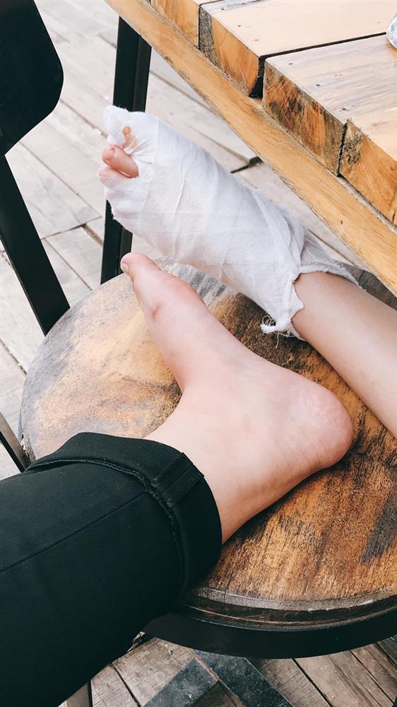 Khách du lịch tố quán bánh tráng nướng nổi tiếng Đà Lạt đuổi khách đang bị đau chân-2