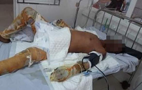 Bé trai bị bỏng nặng trong vụ phóng hỏa đốt nhà ở Phú Yên: Bà ngoại ơi... cứu con-2